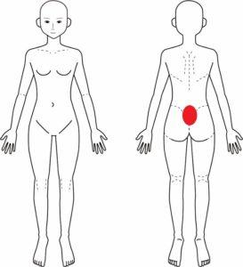 第5腰椎分離症
