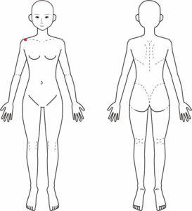 肩鎖関節の痛み