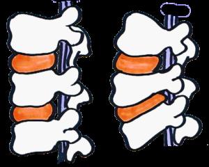 右絵 腰椎椎間板ヘルニア