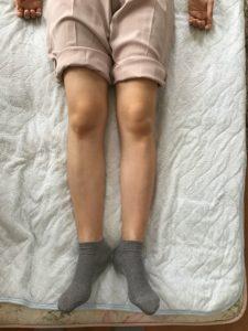膝の痛み 足首の痛み