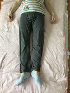 恥骨の痛み 妊娠中 施術後